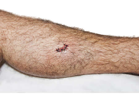 stitches on a male leg