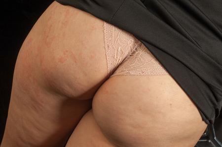 grosse fesse: Ass cellulite. graisse sous-cutanée persistante causant capitonnage de la peau, en particulier sur les hanches et les cuisses des femmes.