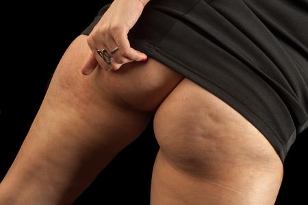grosse fesse: Ass cellulite. graisse sous-cutan�e persistante causant capitonnage de la peau, en particulier sur les hanches et les cuisses des femmes.