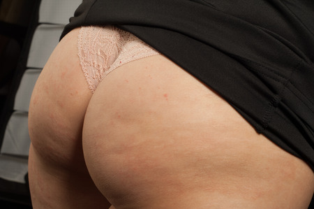 Ass cellulite. persistent subcutaneous fat causing dimpling of the skin, especially on womens hips and thighs.