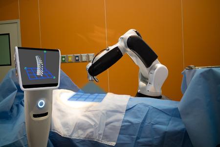 de robotassistent in medische technologie gebruikt voor het scannen van een patiënt vóór een wervelkolomoperatie en stuurt de gegevens van 3D-wervelkolom naar de monitor op de robot. Het helpt instrumentnauwkeurigheid te bepalen voor sneller, veiliger Stockfoto
