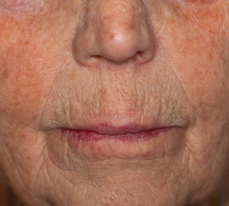 Close-up view of a very old woman's mouth