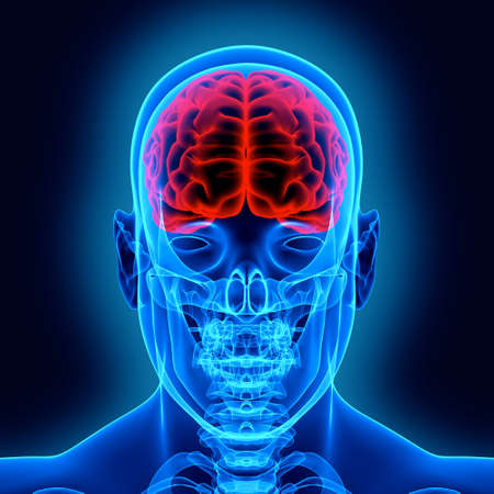 brain injury: Human brain and scull in x-ray Stock Photo