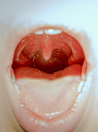 Closeup view of open mouth with tonsils Stock Photo