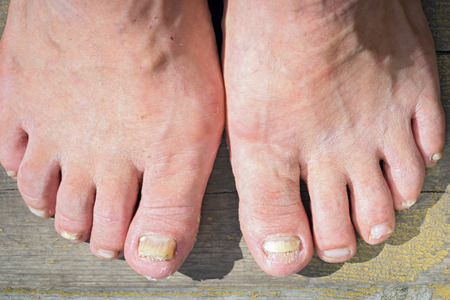 A toenail fungus at the peak of the infection. Stockfoto