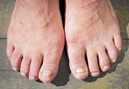 podiatry: onychomycosis with fungal nail infection Stock Photo