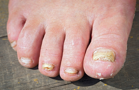 Fungus Infection on Nails of Man's Foot Stockfoto