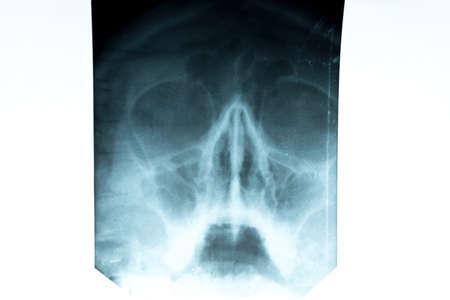 X-ray of the nasal septum. Skull, prevention Stock Photo