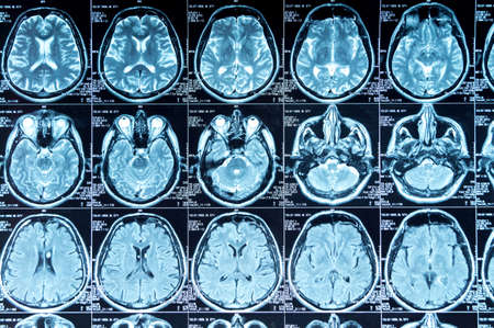 MRI scan of the brain, medical examination of the brain Stock Photo - 120818659