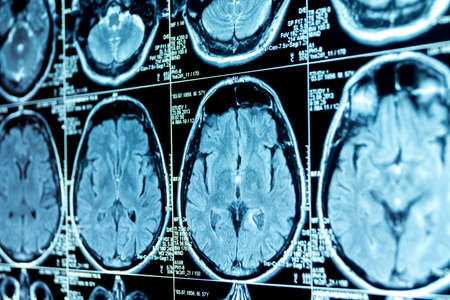 MRI scan of the brain, medical examination of the brain Stock Photo - 120818664