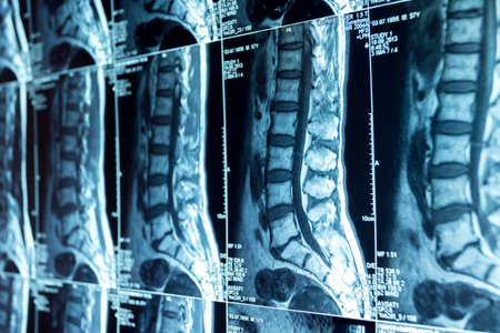 MRI scans of the lumbosacral spine, medical examination Stock Photo - 120818691