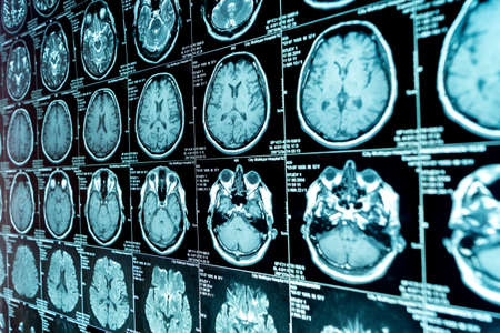 MRI scan of the brain, medical examination of the brain Stock Photo - 120818700