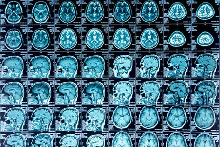 MRI scan of the brain, medical examination of the brain Stock Photo - 120818739