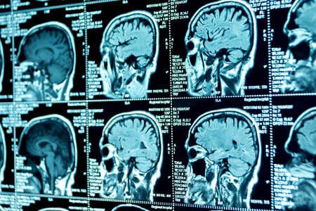 MRI scan of the brain, medical examination of the brain Stock Photo - 120818740