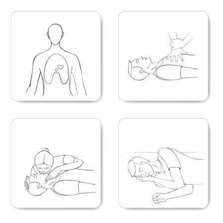 Cardiomanipulatory procedimiento de resucitación RCP