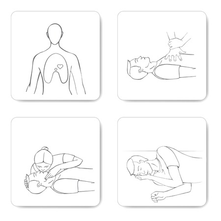 Cardiomanipulatory resuscitation procedure  CPR  Vector