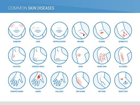 Common skin diseases  イラスト・ベクター素材