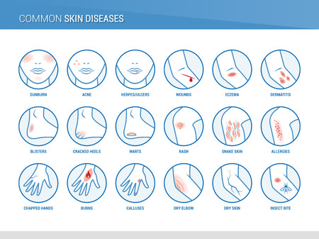 Common skin diseases Stock Illustratie