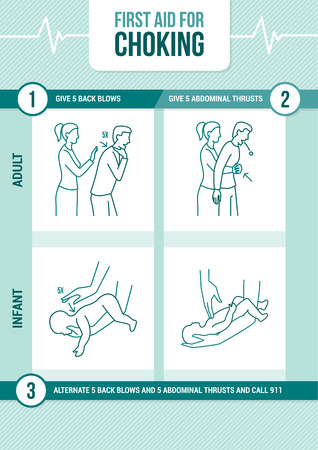 First aid procedure for choking and heimlich maneuver for adults and infants Illustration