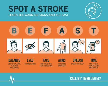 Sensibilisation aux urgences de l'AVC et des signes de reconnaissance, procédure médicale infographique Banque d'images - 67035202