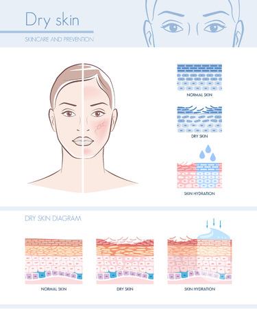 Seca infografía hidratación de la piel con el diagrama de la piel; cuidado de la piel y el concepto de belleza Ilustración de vector