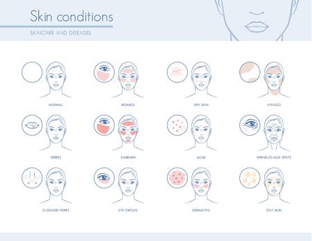 피부 상태와 문제점, 스킨 케어 및 피부과 개념 일러스트