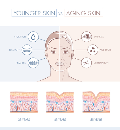 Young healthy sking and older skin comparison, skin layers and wrinkles diagram