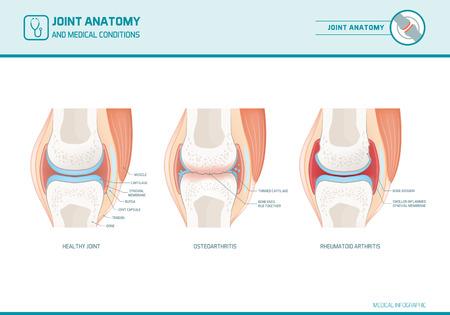 Joint anatomy, osteoarthritis and rheumatoid arthritis infographic with anatomical illustrations