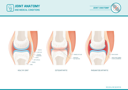 Joint anatomy, osteoarthritis and rheumatoid arthritis infographic with anatomical illustrations