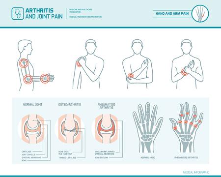 Infographie infographique de l'arthrite et des douleurs articulaires, illustration anatomique d'une main enflammée et d'un bras Banque d'images - 75835722