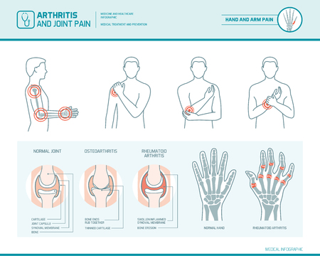 Arthritis and joint pain infographic, anatomic illustration of an inflammed hand and arm Illustration