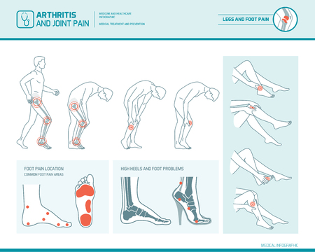 Foot pain, leg pain and arthritis infographic: inflammation spots, pain areas and high heels damage