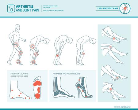 Dolor en el pie, dolor en las piernas y artritis infográfico: manchas de inflamación, áreas de dolor y daños en los talones altos