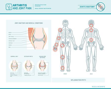 Artritis reumatoide, osteoartritis y dolor articular infográfico con manchas inflamatorias e ilustración anatómica
