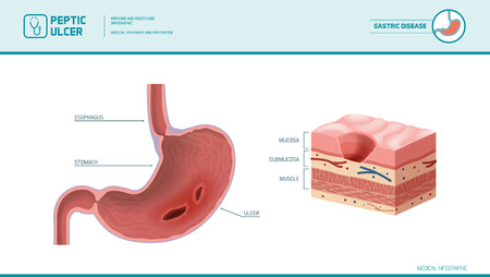 Stomach and peptic ulcer: inflamed sore on the stomach mucous membrane, stomach lining cross section diagram, medical illustration