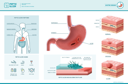 76645252 peptic ulcer and helicobacter pylori infographic with symptoms and causes stomach cross section diag?ver=6 peptic ulcer and helicobacter pylori infographic with symptoms