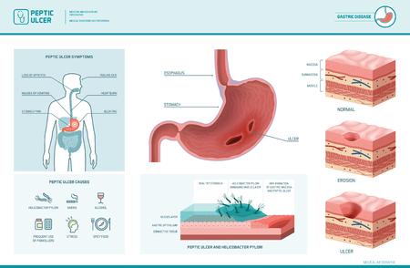 Úlcera péptica e infiltración de helicobacter pylori con síntomas y causas, diagrama de sección transversal del estómago, ilustración médica