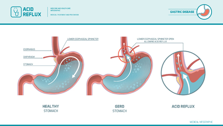 Acid reflux, heartburn and gerd infographic with medical illustration: stomach acid moving up into the esophagus causing acid reflux symptoms Illustration