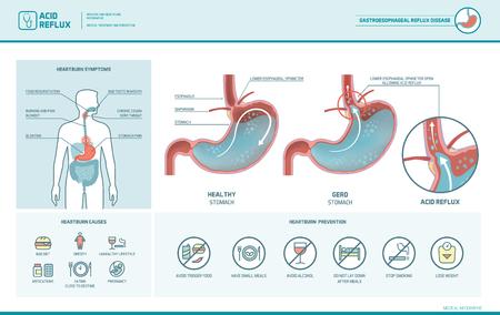 Kwas refluksowy, zgaga i infekcja gerd z ilustracją medyczną żołądka, objawy, przyczyny i zapobieganie