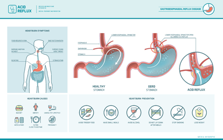 Reflux acide, brûlures d'estomac et infographie infantile avec illustration médicale, symptômes, causes et prévention de l'estomac