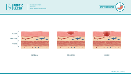 76645259 maag erosie en maagzweerstadia infografische maagvoering en slijmvlies dwarsdoorsnede diagram medisc?ver=6 stomach erosion and peptic ulcer stages infographic stomach