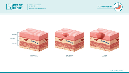 Stomach erosion and peptic ulcer stages infographic: stomach lining and mucosa cross section diagram, medical illustration