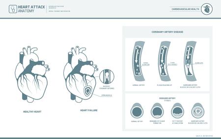 Hartaanval en atherosclerose medische illustratie: gezond en beschadigd hart, bloedvatensectie met opstapeling van vetdeposities Stock Illustratie