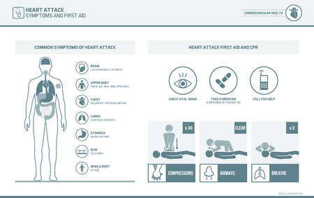 compressions: Heart attack warnings and symptoms infographic and first aid cpr medical emergency procedure