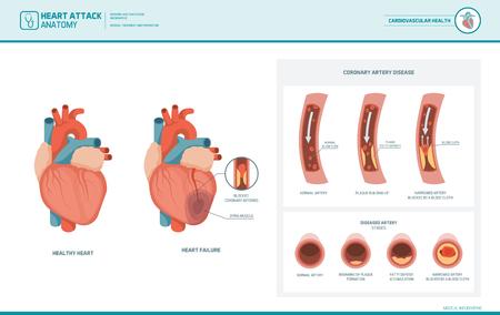 Illustrazione medica di aterosclerosi e di attacco di cuore: cuore sano e danneggiato, sezione di vaso sanguigno con accumulo di grasso