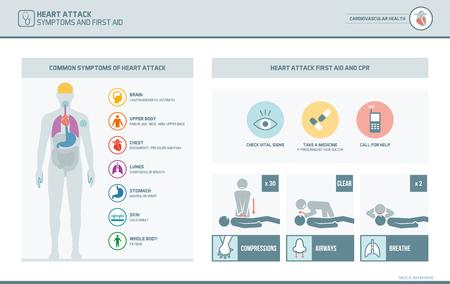 Avertissements et symptômes d'attaque cardiaque infographique et premiers soins cpr procédure d'urgence médicale Banque d'images - 77222203