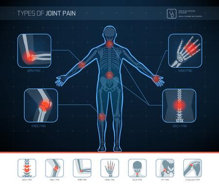 Arten von Gelenkschmerzen medizinische Infografik mit Symbolen Vektorgrafik