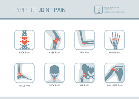 Types of joint pain medical medical icons set Иллюстрация