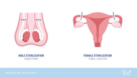 Procedure di sterilizzazione maschile e femminile: vasectomia e legatura delle tube, concetto di assistenza sanitaria e controllo delle nascite