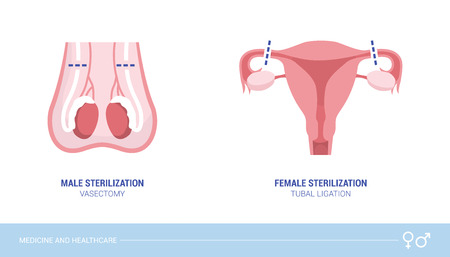 Male and female sterilization procedures: vasectomy and tubal ligation, healthcare and birth control concept Illustration